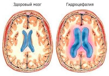 Как выглядит здоровый мозг и пораженный гидроцефалией