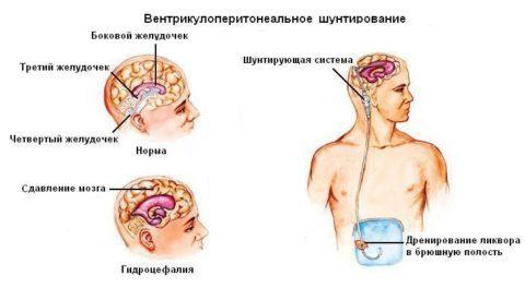 Один из сложных методов лечения гидроцефалии