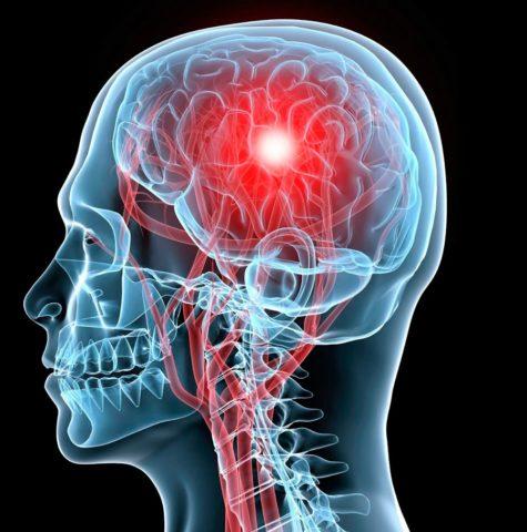 Головные боли могут быть признаками ишемии головного мозга