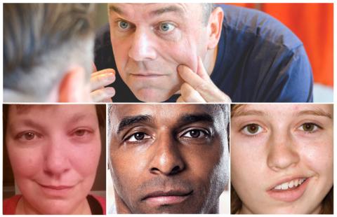 Характерные изменения лица при сосудистой катастрофе (инсульте)