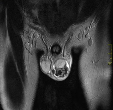 Рентген мошонки и малого таза