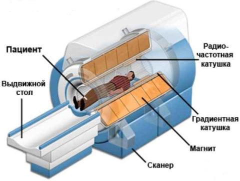 Принцип работы магниторезонансного томографа