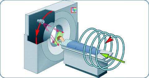 Спиральная компьютерная томография