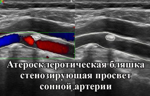 Вот что показывает УЗИ сосудов головы и шеи при холестериновых бляшках в сосуде