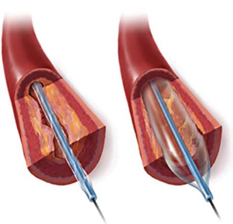 Принцип установки стента в кровеносном сосуде, закупоренном бляшками