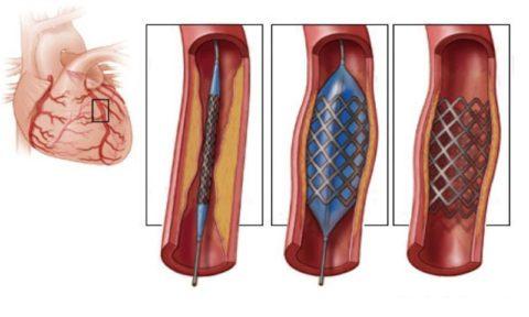 Стент в сердечных артериях