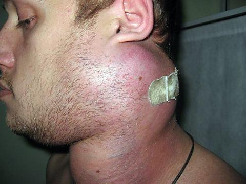 Увеличение лимфатических узлов – одна из форм осложнений лимфангита