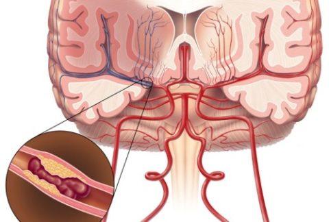 Атеросклероз сосудов ГМ