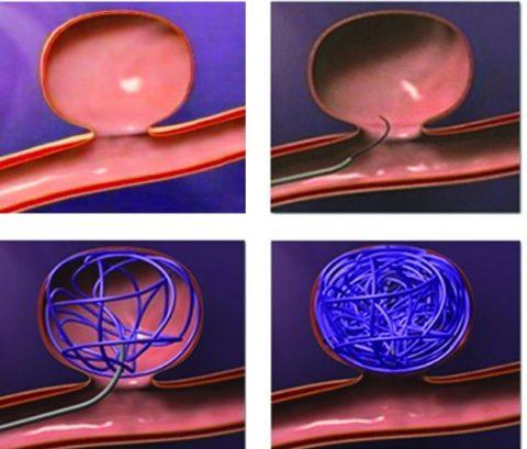 Эндоваскулярная методика (с помощью спирали) тромбирования аневризмы