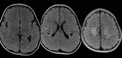 Глиоз головного мозга на разных этапах