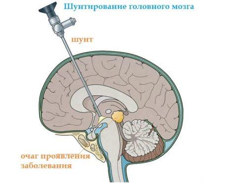 Шунтирование артерии