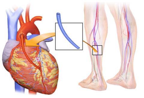 Вена взятая из ноги становится материалом для создания шунта