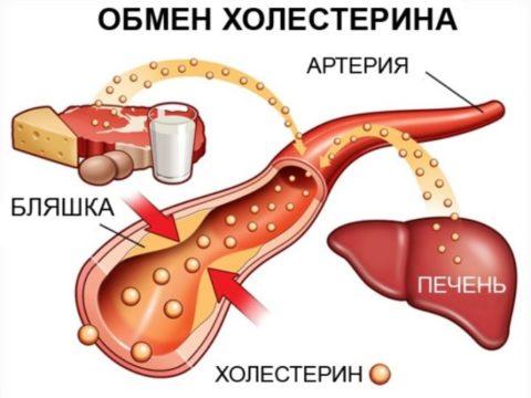 Гиперхолестеринемия формируется из-за нарушения функции липопротеидов