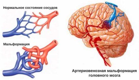 Схематическое изображение нормальных сосудов и аномальных