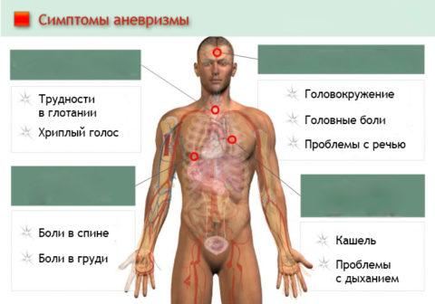 Основные признаки аневризм