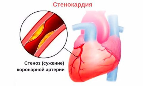 Стеноз сердечного сосуда