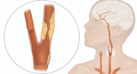 Стеноз шейной артерии