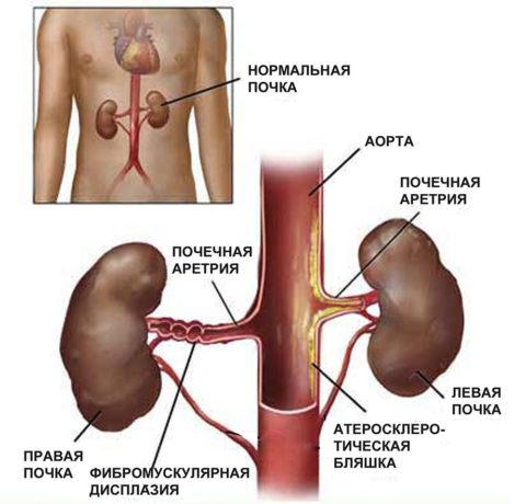 Стеноз в почечной артерии