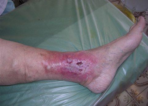 Трофическая язва – результат стеноза ног