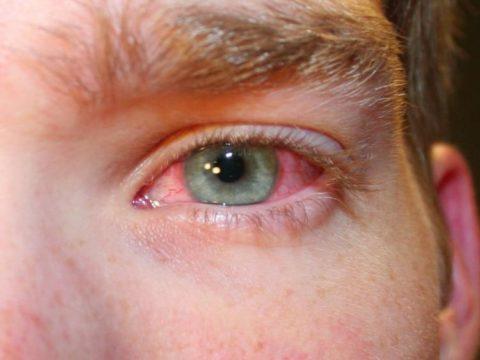 Лопнувшие сосуды в глазах один из признаков сужения сосудов глазного дна