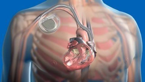Наличие кардиостимулятора не является препятствием для проведения КТ