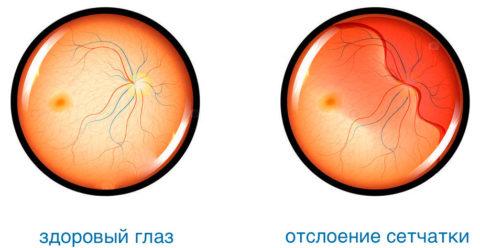 Отслоение сетчатки одно из возможных последствий сужения сосудов глазного дна