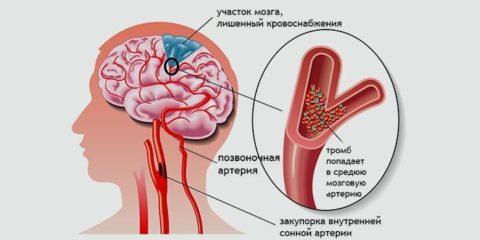 Ишемия головного мозга требует детального обследования. УЗИ – это первый анализ при данной патологии
