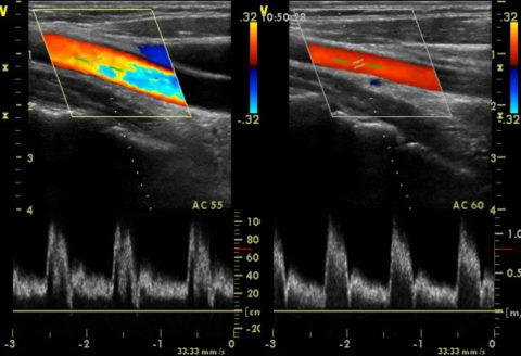 При проявлении симптомов важно пройти квалифицированное обследование (на фото УЗДГ сосудов шеи и головного мозга)