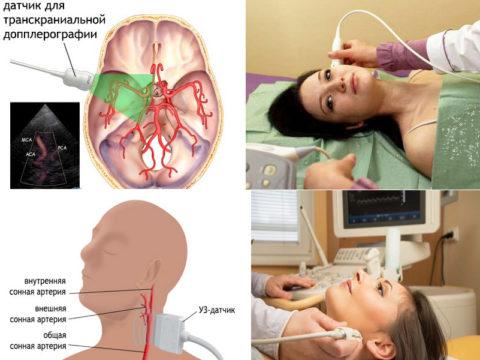 Ультразвуковая диагностика шеи и головы – высокоинформативная и абсолютно безопасная