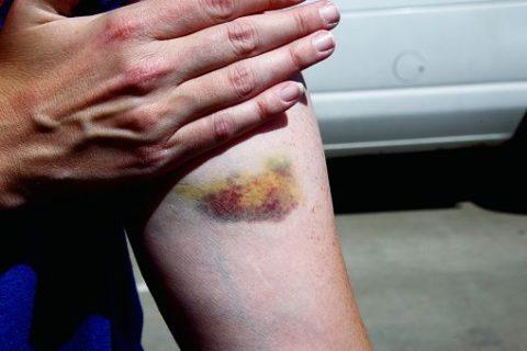 Гематома на руке – следы после разрыва кровеносных сосудов