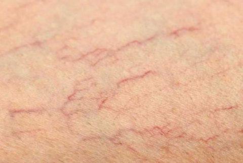 Венозная сетка на коже