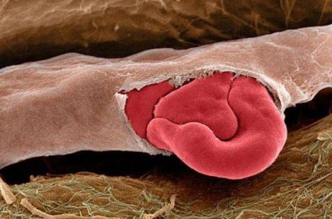 Визуальное отображение лопнувшего капилляра