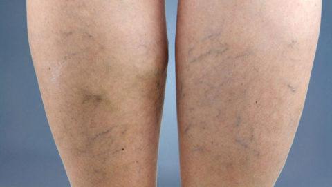 Фото. Первые признаки начинающейся варикозной болезни на ногах