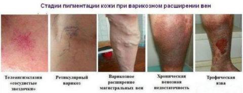 Стадии варикозного расширения вен на ногах