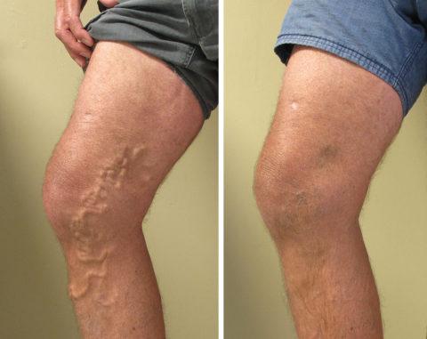 Варикозную болезнь поверхностных сосудов невозможно не заметить