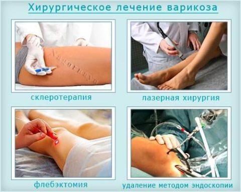 Виды хирургических вмешательств
