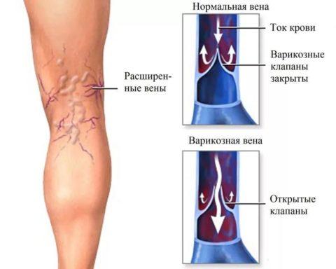 Явные признаки варикозного расширения вен на ногах
