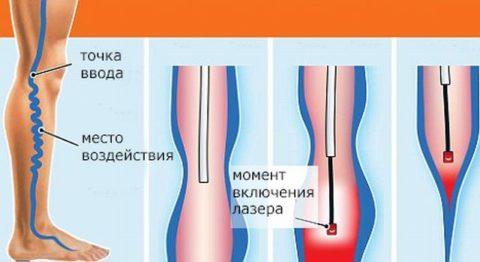 Техника эндовазальной процедуры