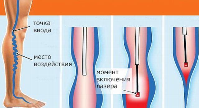 лазерная коагуляция варикозных вен отзывы