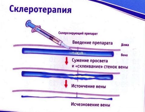 Фото. Простой и эффективный способ лечения, это склерозирование вен пеной