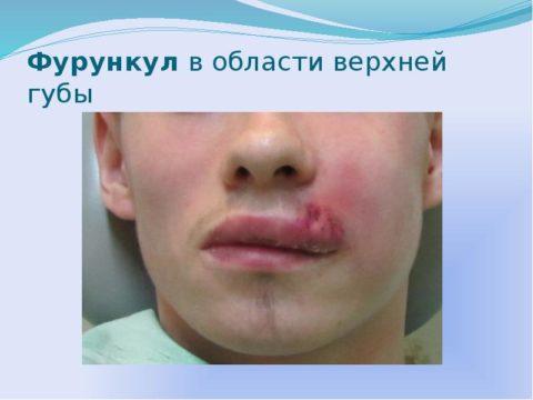 Фурункул верхней губы