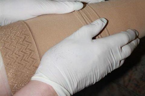 Компрессионные чулки можно надевать с использованием латексных перчаток