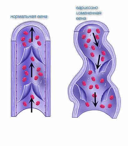 Кровоток в нормальной и варикозно измененной вене