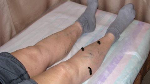 Лечение Hirudo medicinalis варикоза средней степени тяжести.