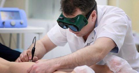 Лечение варикоза без традиционного скальпеля