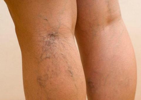 На фото – варикоз голеней 2-3 степени
