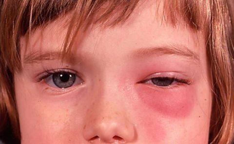 На фото: флегмона глазницы и воспаленная лицевая вена.