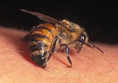 На фото представлена пчела в момент укуса.