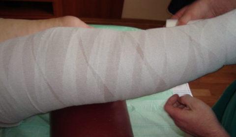 Ноги бинтуют после операции