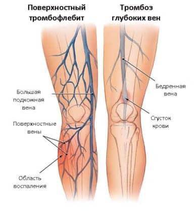 Отличие тромбофлебита поверхностных и глубоких вен